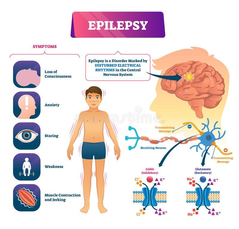 Illustration de vecteur d'épilepsie Désordre en difficulté marqué de CNS plan éducatif illustration de vecteur