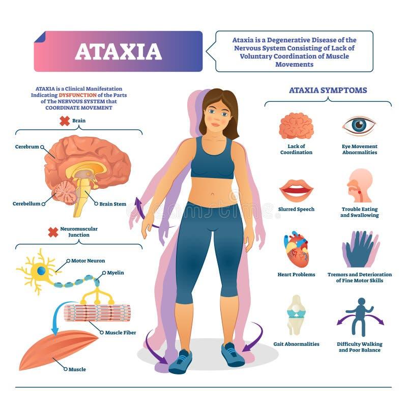 Illustration de vecteur d'ataxie Plan médical marqué de désordre de cerveau de mouvement illustration de vecteur
