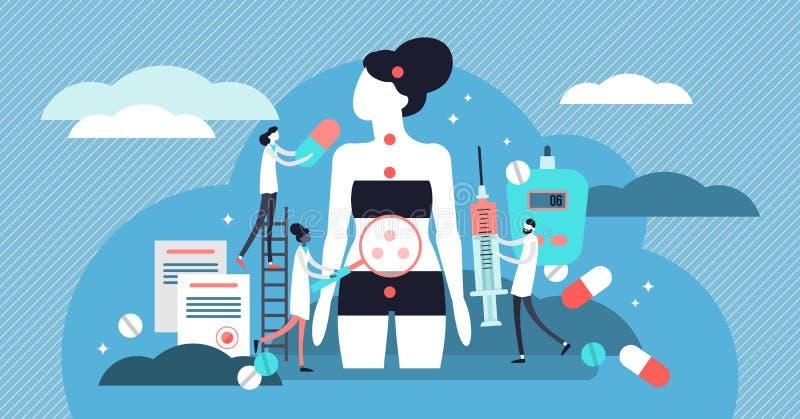 Illustration de vecteur d'endocrinologie Concept minuscule de personnes des maladies d'hormones illustration libre de droits