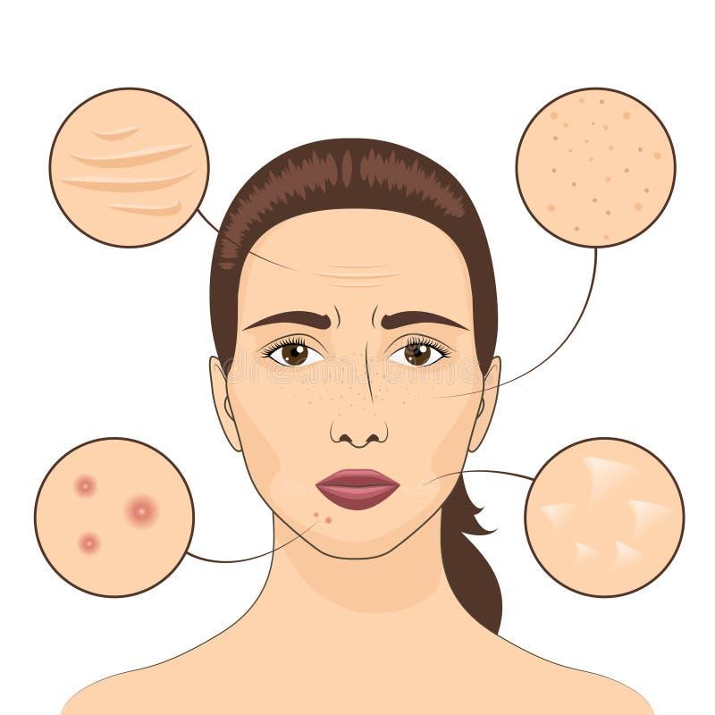Illustration de vecteur de problème de peau de femme Visage femelle avec des secteurs problématiques de peaux illustration de vecteur