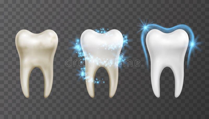 Illustration de vecteur des dents blanchissant le processus - nettoyage et protection contre des taches et des bactéries illustration libre de droits
