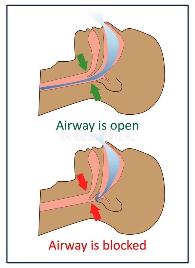 Illustration de vecteur des symptômes d'apnea illustration de vecteur