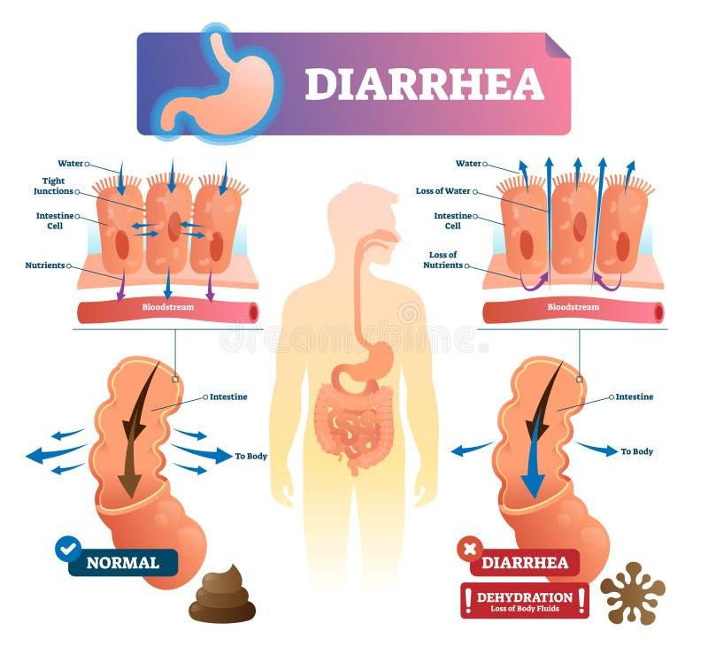 Illustration de vecteur de diarrhée Maladie marquée d'intestin d'estomac plan médical illustration libre de droits