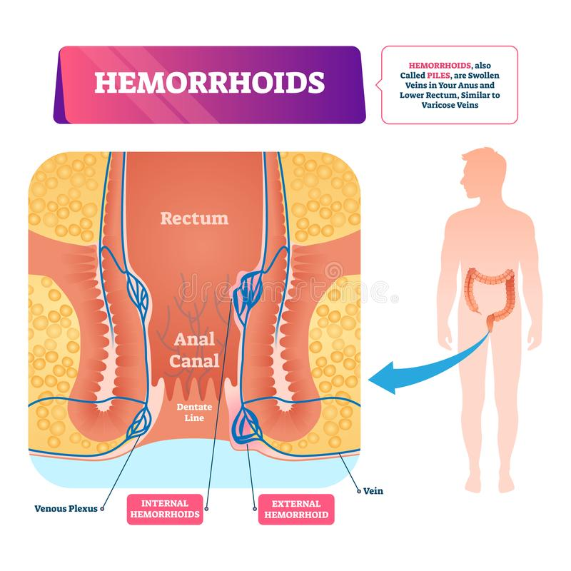 Illustration de vecteur de hémorroïdes Les piles vasculaires anatomiques marquées complotent illustration de vecteur