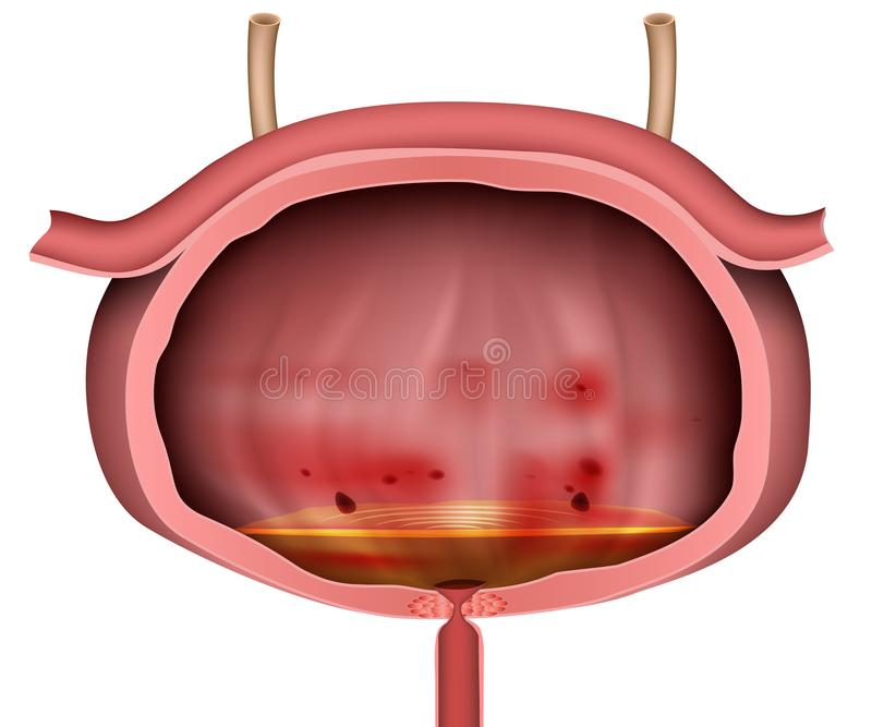 Illustration de vecteur de l'inflammation 3d de vessie non étiquetée sur le fond blanc illustration stock