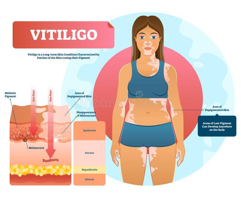 Illustration de vecteur de Vitiligo Maladie auto-immune blanche de colorant avec la perte de colorant illustration de vecteur