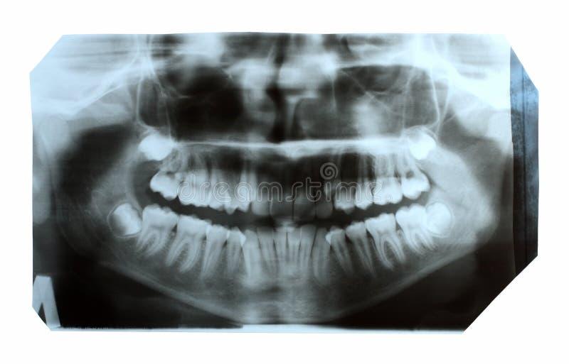 Illustration dentaire de rayon X de mâchoire photographie stock libre de droits