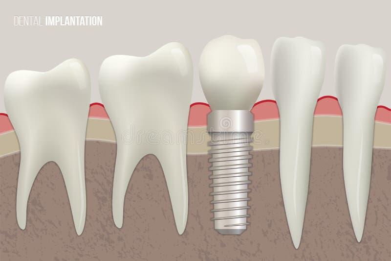 Illustration dentaire de vecteur d'implantation Dents saines et implant dentaire sur l'illustration médicale illustration libre de droits