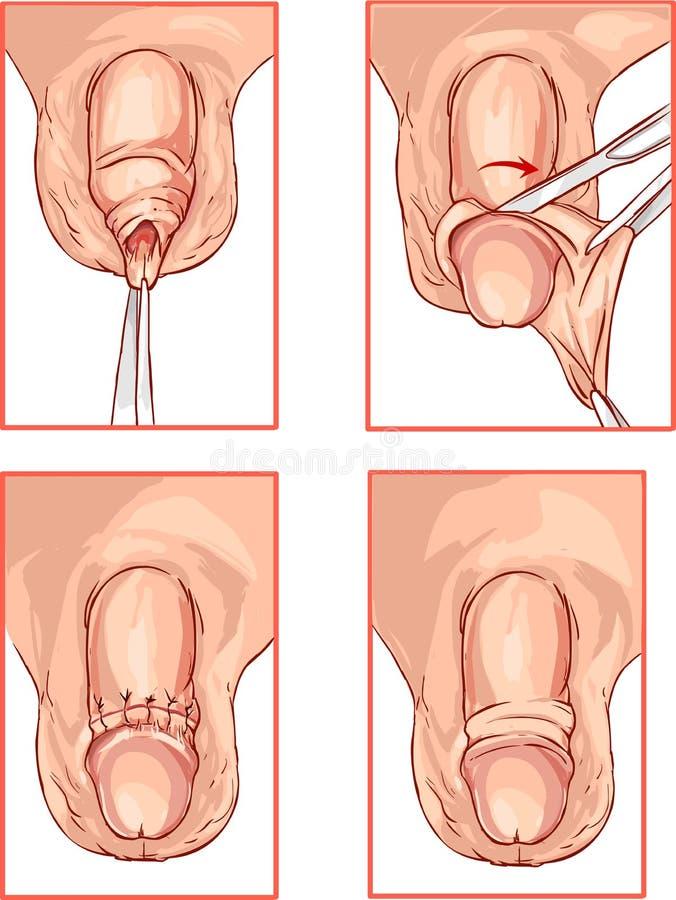 Illustration Der Beschneidung Der Vorhaut Von Der Penis