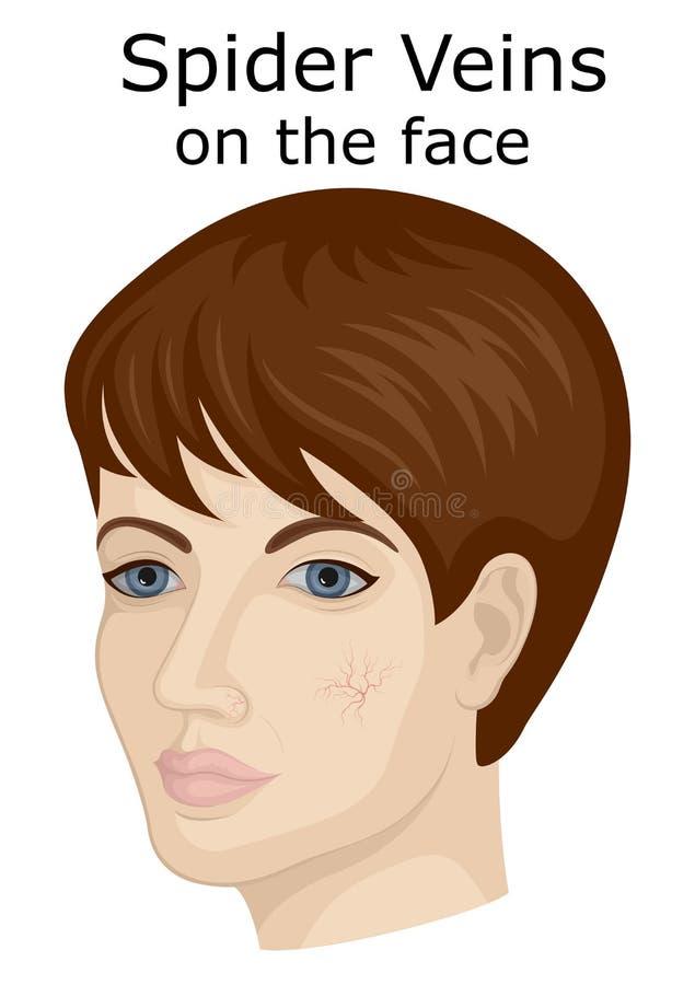 Illustration der Gesichtsspinnenadern lizenzfreie abbildung