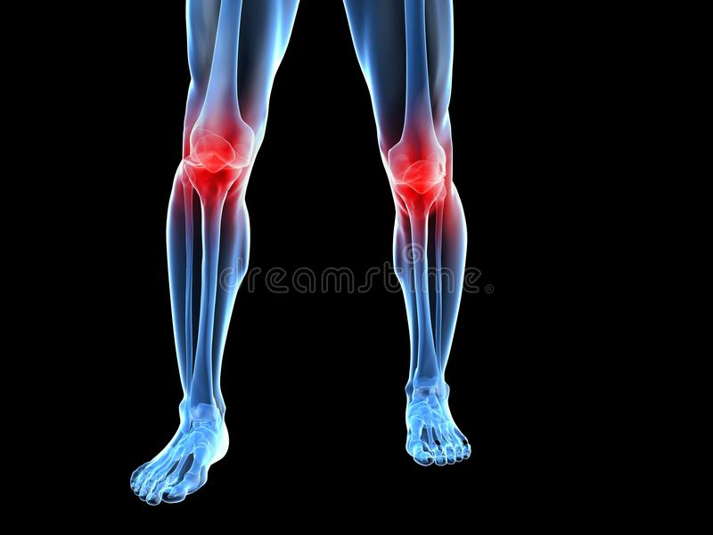 Illustration douloureuse de genou illustration de vecteur