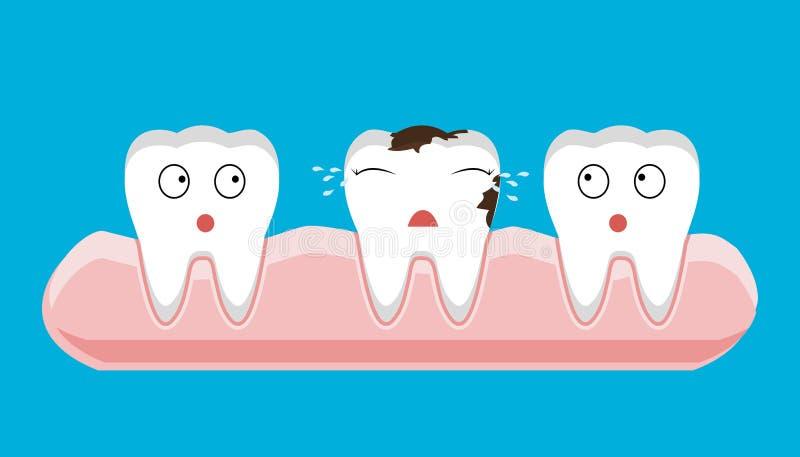 Illustration du délabrement de vue sectionnelle de dent avec le problème de santé dentaire de carie illustration libre de droits