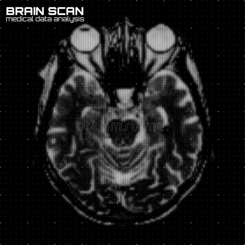 Illustration för analys för tomography för hjärna för vektorgråtonabstrakt begrepp Bildläsning för Digital hjärnröntgenstråle vektor illustrationer