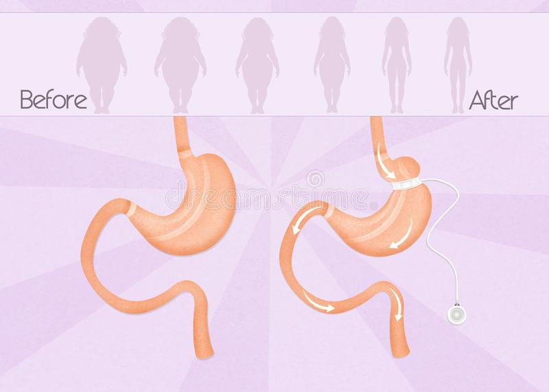 Before and after gastric band surgery. Illustration of before and after gastric band surgery royalty free illustration