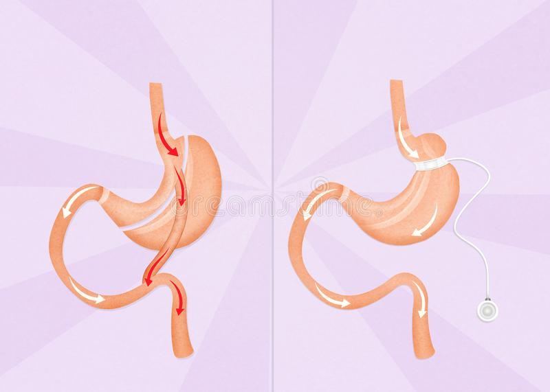 Gastric bypass and gastric band surgery. Illustration of gastric bypass and gastric band surgery stock illustration