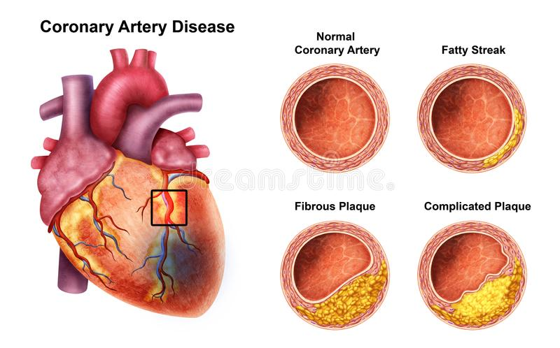Heart Coronary Problem with Cholesterol. Illustration of the Heart Coronary Problem with Cholesterol stock illustration