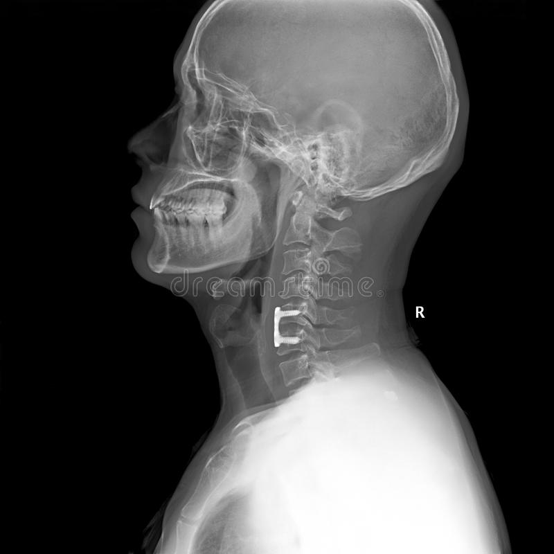 Illustration latérale de rayon X de tête et de cou photographie stock libre de droits