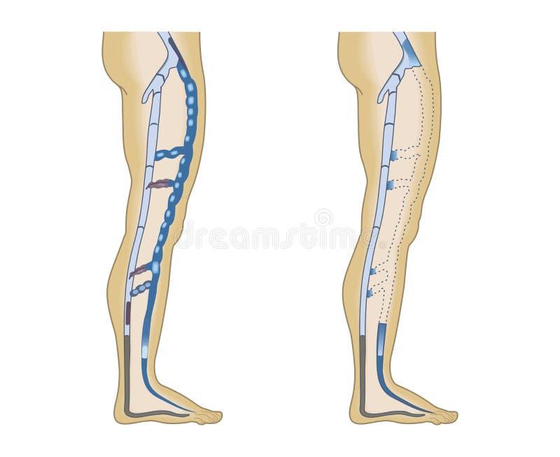 Illustration leg veins stock illustration