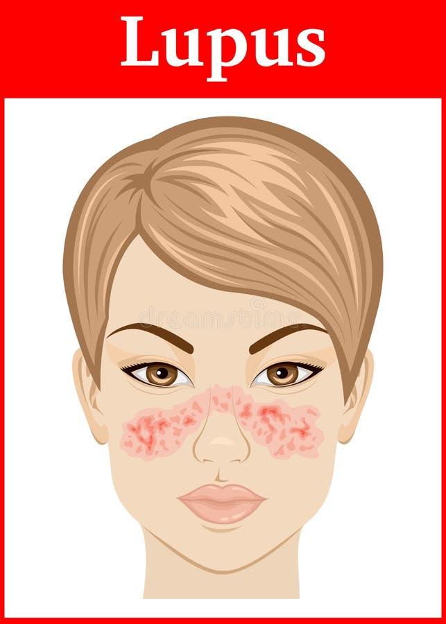 Illustration of Lupus stock illustration