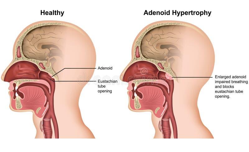Illustration médicale d'hypertrophie adénoïde sur le fond blanc illustration stock