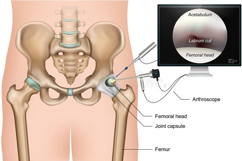 Illustration médicale de vecteur de l'arthroscopy 3d de hanche sur le fond blanc illustration libre de droits