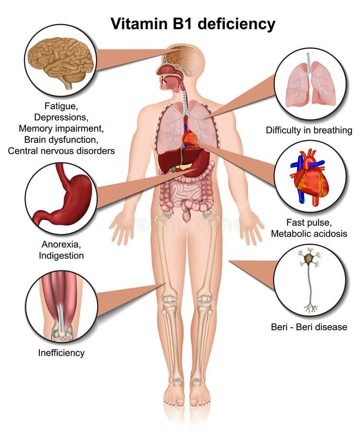 Illustration médicale de vecteur de l'insuffisance 3d de la vitamine B1 infographic sur la thiamine blanche de fond illustration de vecteur