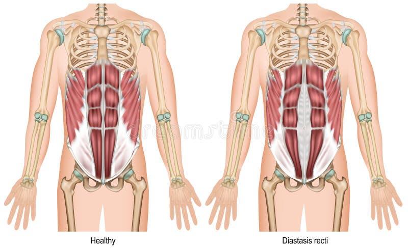 Illustration médicale du recti 3d de Diastasis sur le fond blanc illustration de vecteur