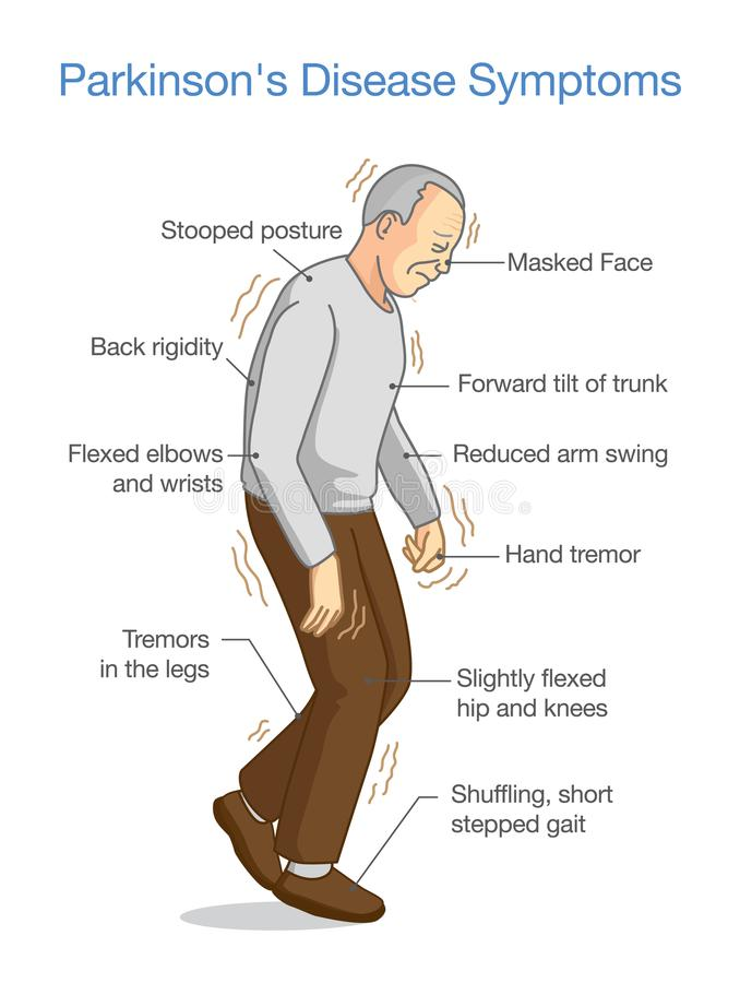 Illustration om tecken för sjukdom för Parkinson ` s royaltyfri illustrationer