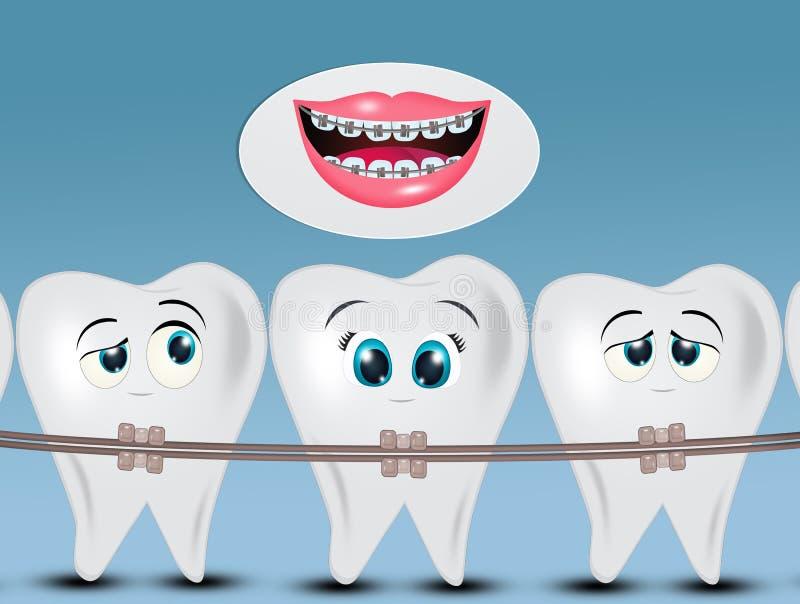 Orthodontics teeth or dental braces. Illustration of orthodontics teeth or dental braces stock illustration