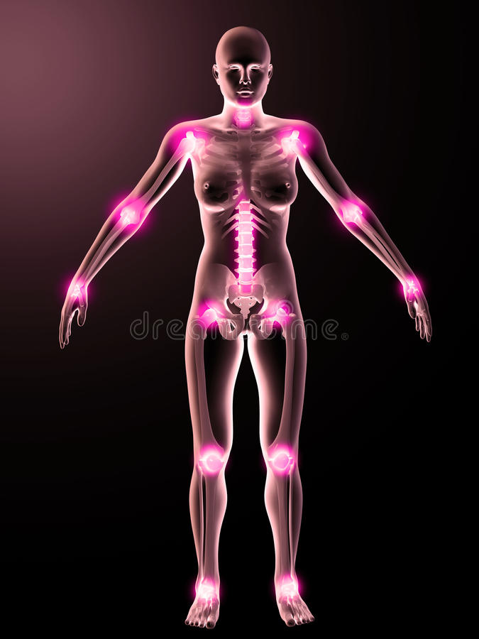 Download Illustration Of Painful Joints Stock Illustration - Illustration of computer, backbone: 27524387