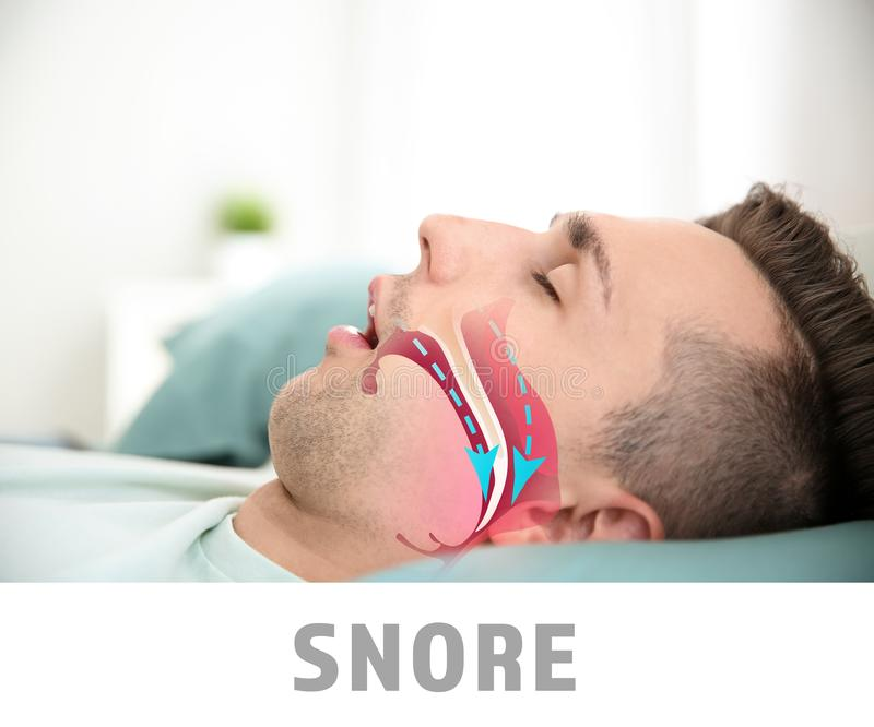 Illustration showing airway during snore royalty free stock photos