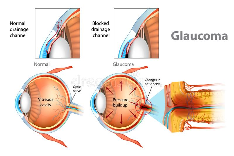 Illustration showing open-angle glaucoma. stock illustration