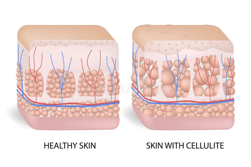 Illustration of skin cross section showing cellulite. The formation of cellulite. Cellulite occurs in most females and vector illustration