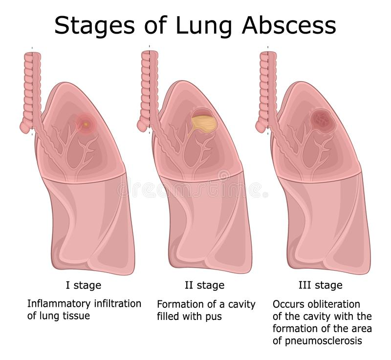 Stages of Lung Abscess. Illustration of the three stages of pulmonary disease - Lung Abscess vector illustration