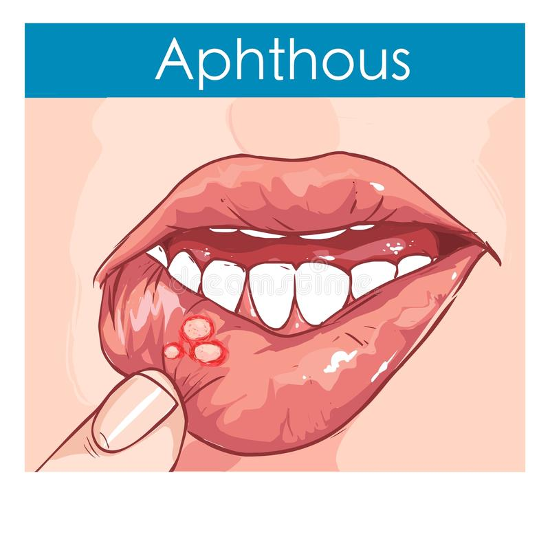 Illustration of a Woman with aphthae on lip royalty free illustration