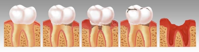 Illustrazione del processo di carie dentaria immagine stock libera da diritti
