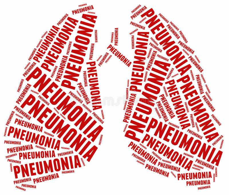 Illustrazione della nuvola di parola relativa a polmonite royalty illustrazione gratis