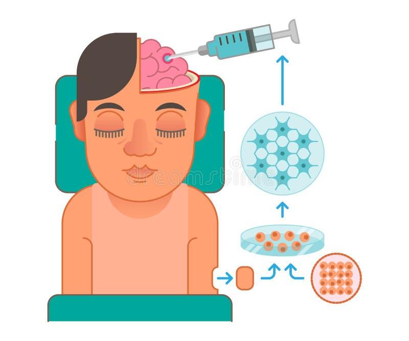 Illustrazione di concetto di trapianto delle cellule cerebrali royalty illustrazione gratis