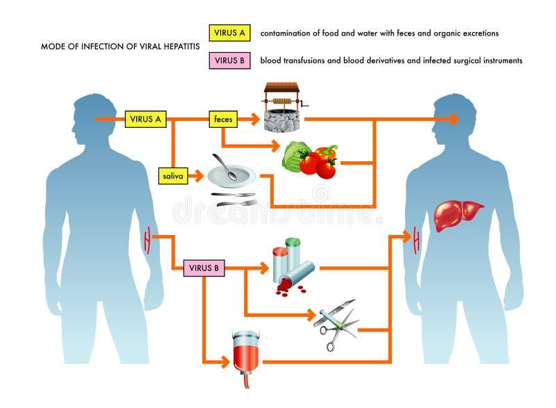 Illustrazione di epatite virale illustrazione vettoriale