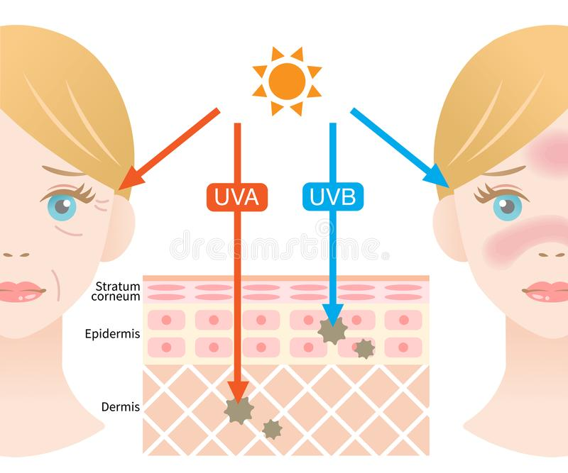 Illustrazione di Infographic della differenza fra i raggi di UVB e di UVA Penetrazione UV in pelle e nel fronte umani della donna illustrazione di stock