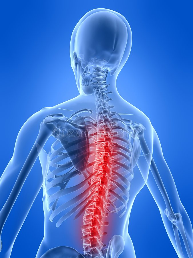 Illustrazione di mal di schiena illustrazione di stock