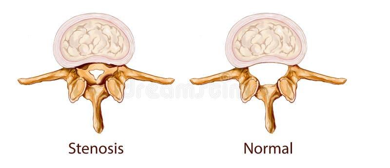 Illustrazione di stenosi immagini stock