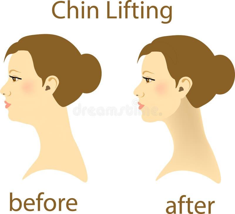 Illustrazione di una donna con un doppio mento e un ambulatorio normale del mento illustrazione vettoriale