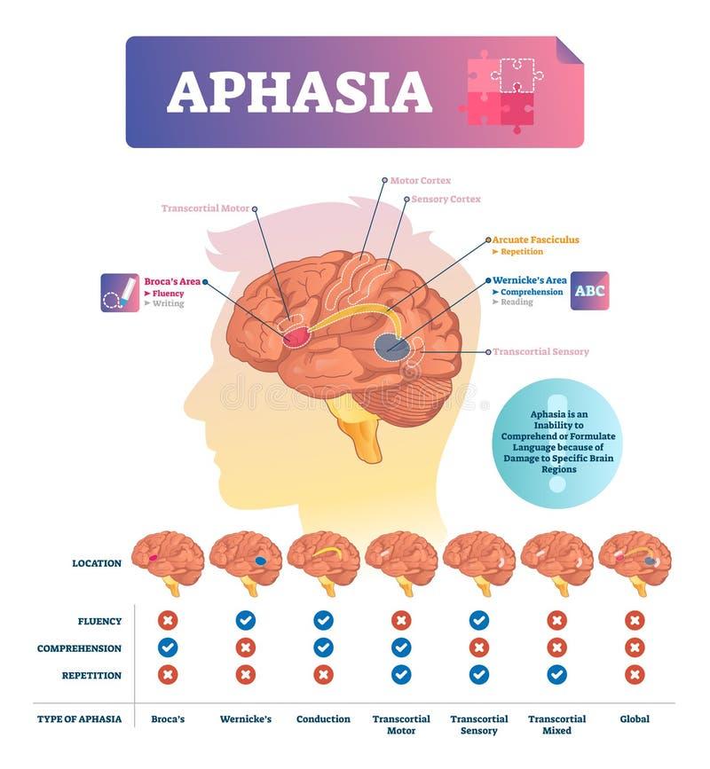 Illustrazione di vettore di afasia Schema educativo identificato con disordine del cervello illustrazione di stock