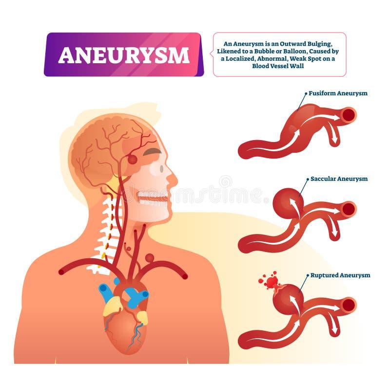 Illustrazione di vettore di aneurisma Schema di gonfiamento esterno medico identificato della nave illustrazione vettoriale