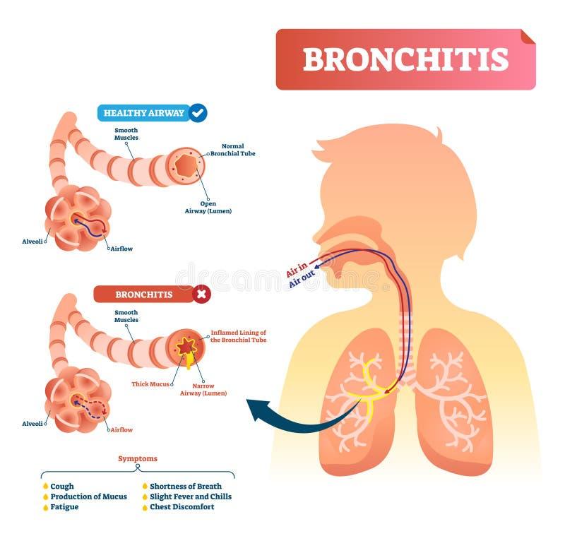 Illustrazione di vettore di bronchite Diagnosi di affezione polmonare con i sintomi royalty illustrazione gratis
