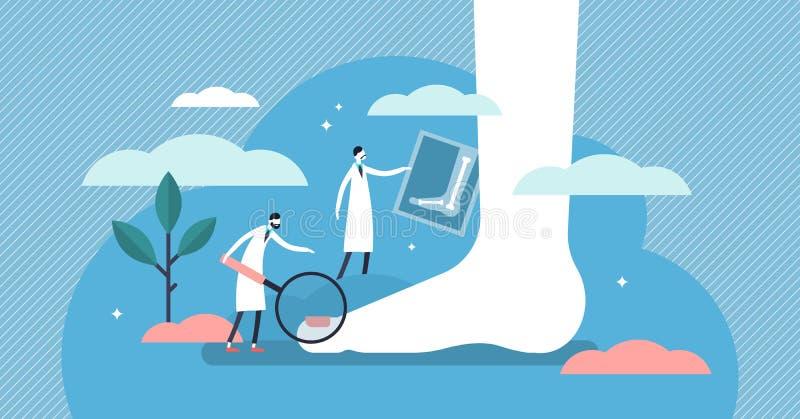Illustrazione di vettore della podologia Concetto minuscolo piano della persona di malattia della caviglia del piede illustrazione di stock