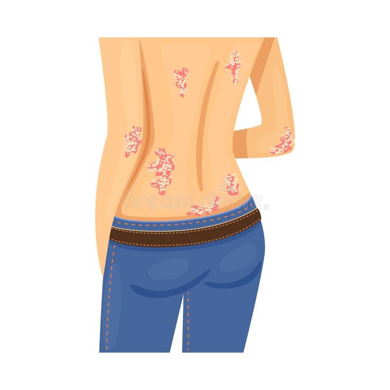 Illustrazione di vettore della psoriasi e del logo della pelle Metta del simbolo di riserva dell'eczema e di psoriasi per il web illustrazione di stock