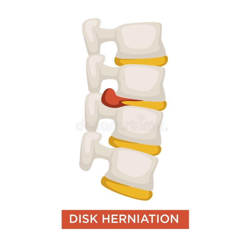 Illustrazione di vettore di infiammazione dell'osso di malattia della spina dorsale dell'ernia del disco illustrazione di stock