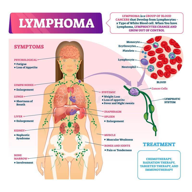 Illustrazione di vettore di linfoma Tipo educativo identificato schema del cancro di sangue illustrazione vettoriale